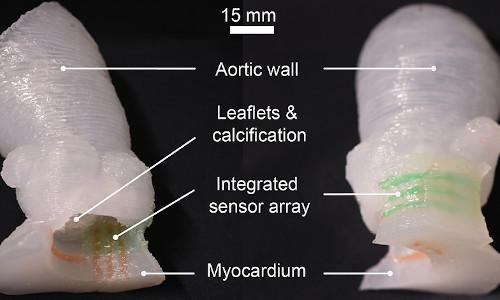 A patient-specific organ model.